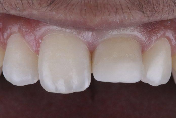 short tooth with unaesthetic restoration style italiano styleitaliano