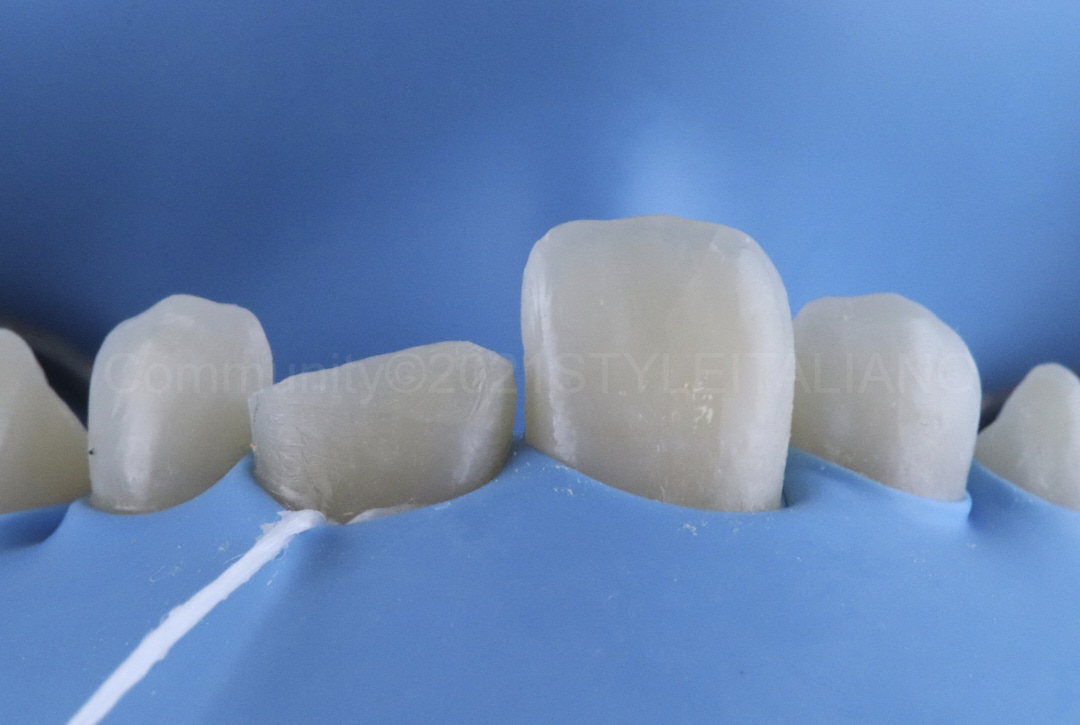 rubber dam isolation before incisor restoration style italiano styleitaliano