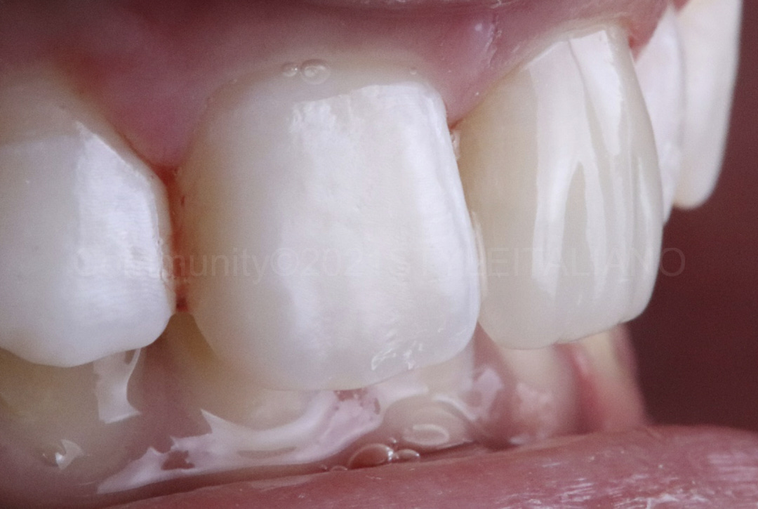 side view of composite restoration of upper left central incisor styleitaliano style italiano