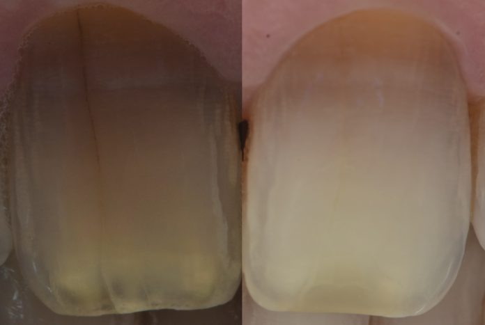 before and after bleaching tetracycline discolored teeth styleitaliano style italiano