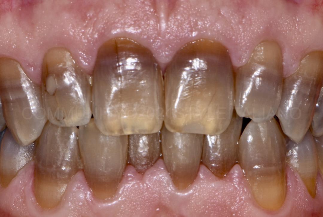 discolored teeth before bleaching style italiano styleitaliano