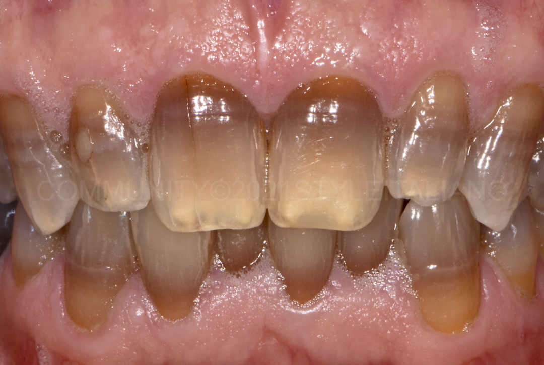 bleaching of discolored teeth style italiano styleitaliano