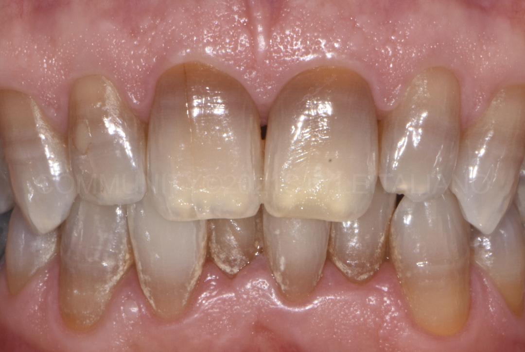 long term bleaching of discolored teeth styleitaliano style italiano