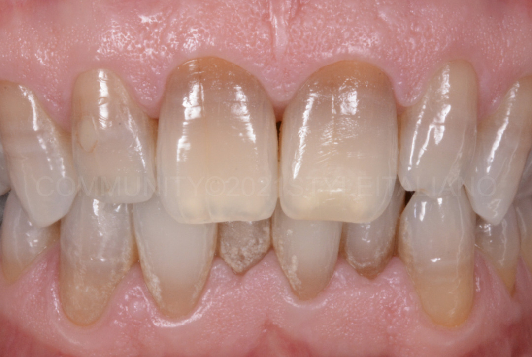 whitening teeth suffering from severe dyschromia style italiano styleitaliano
