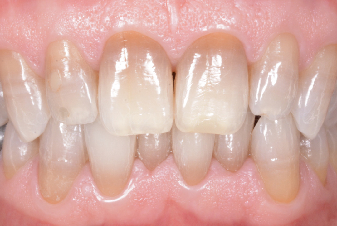 final result bleaching dark teeth
