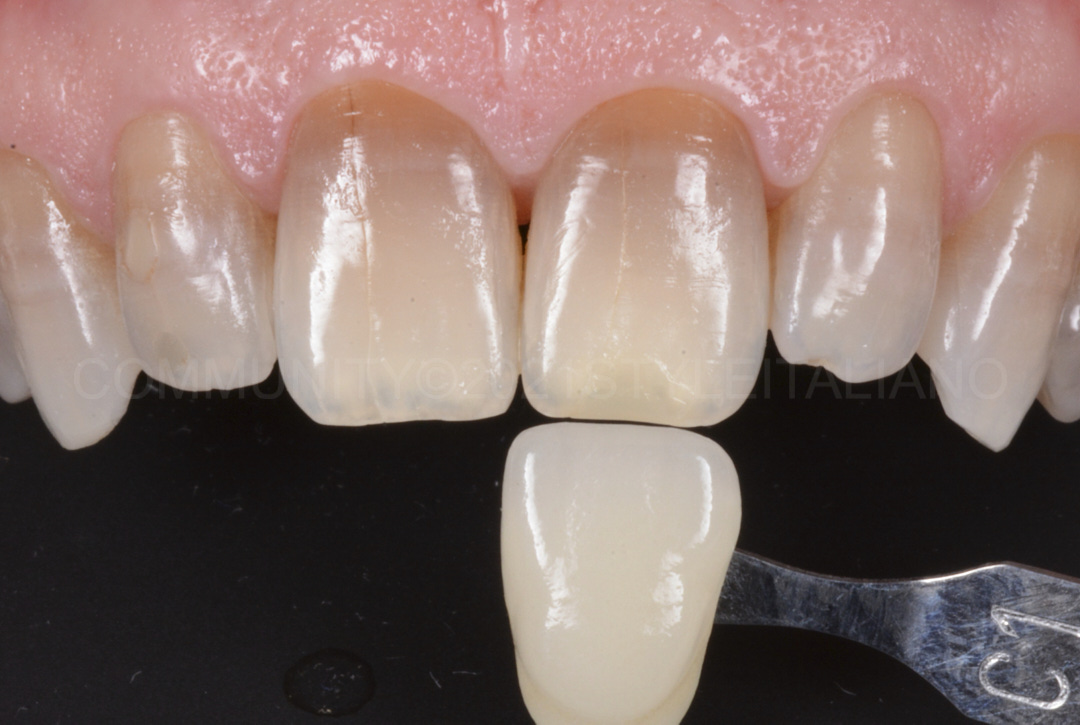 final result after whitening teeth with severe dyschromia style italiano styleitaliano