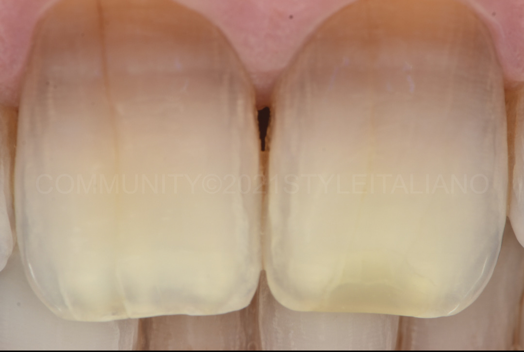 polarize picture of bleached teeth styleitaliano style italiano