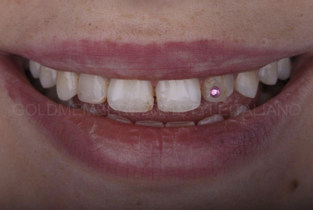 smile with dental jewellery and bad restorations style italiano styleitaliano