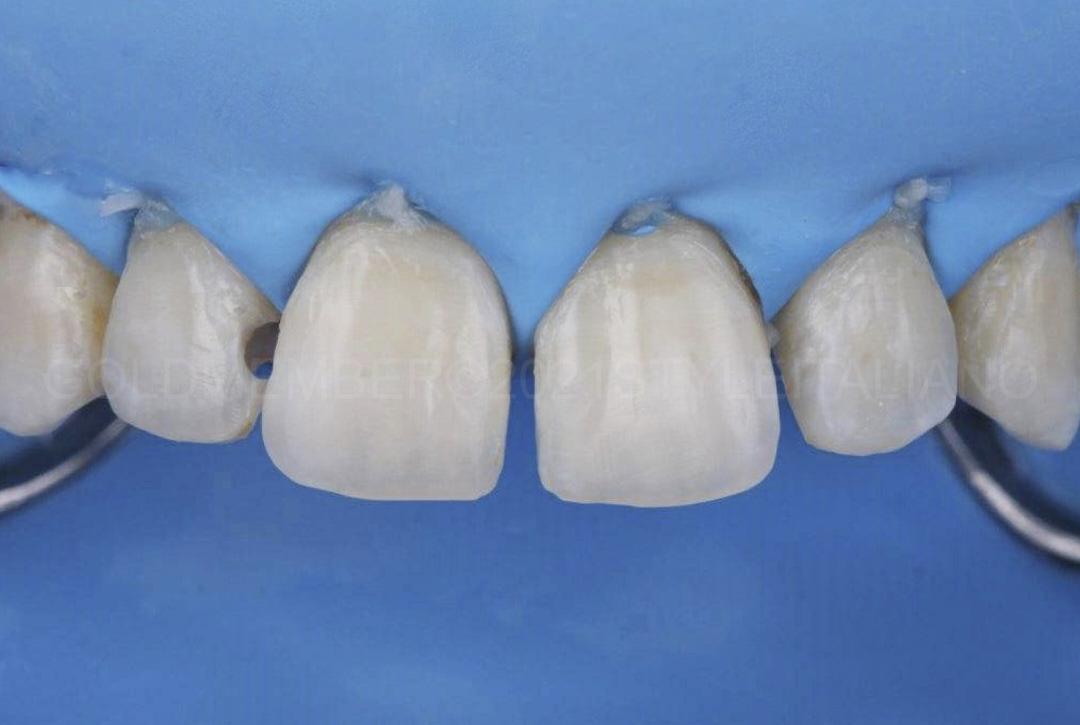 clean dental surfaces under rubber dam isolation style italiano styleitaliano