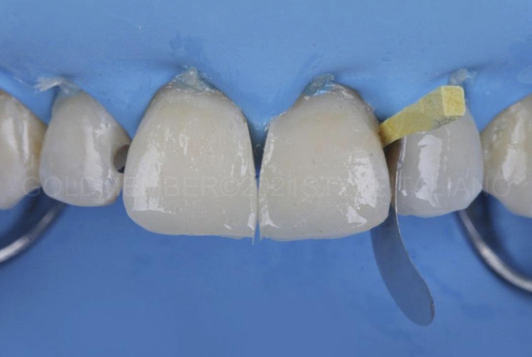 composite diastema closure between central and lateral incisor style italiano styleitaliano