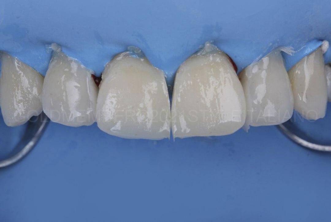 composite restorations before finishing procedures style italiano styleitaliano