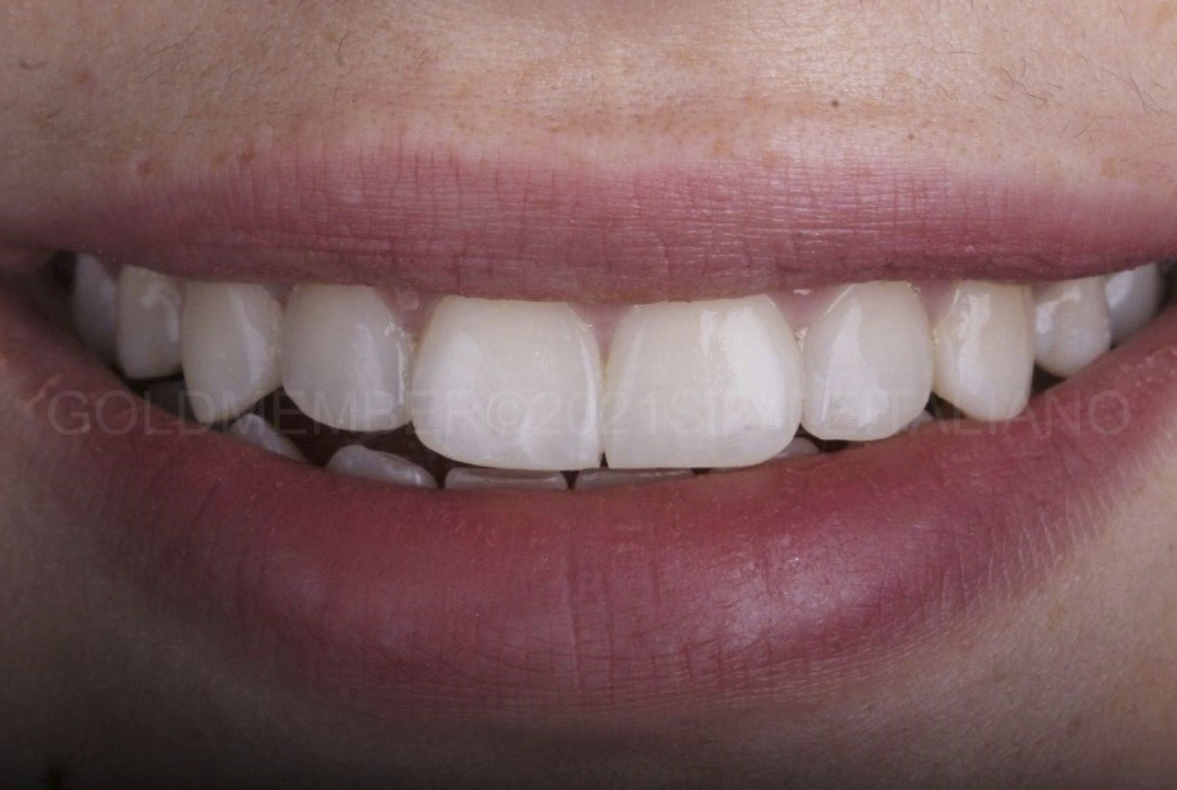 smile of satisfied patient after direct diastema closure style italiano styleitaliano