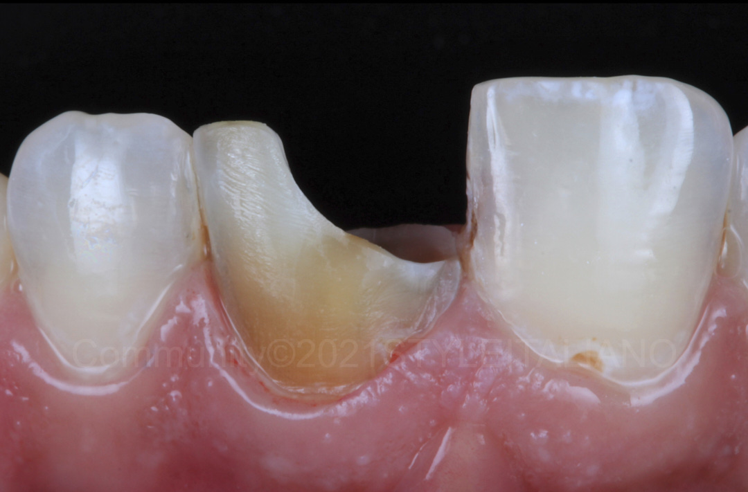 discolored tooth after removal of old restoration style italiano styleitaliano