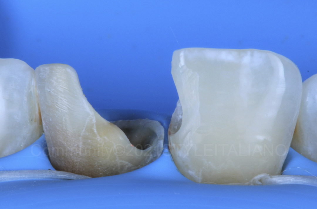 cavities on central incisors before composite restoration style italiano styleitaliano