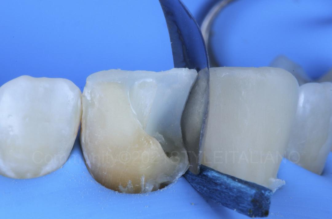 proximal matrix adaptation for direct incisor veneering styleitaliano style italiano