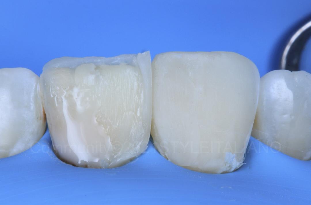 layering of opaque composite to mask dark tooth style italiano styleitaliano