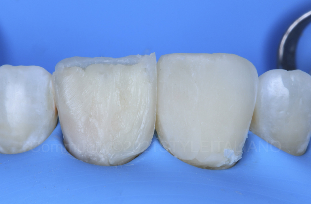 composite layering on central incisor style italiano styleitaliano