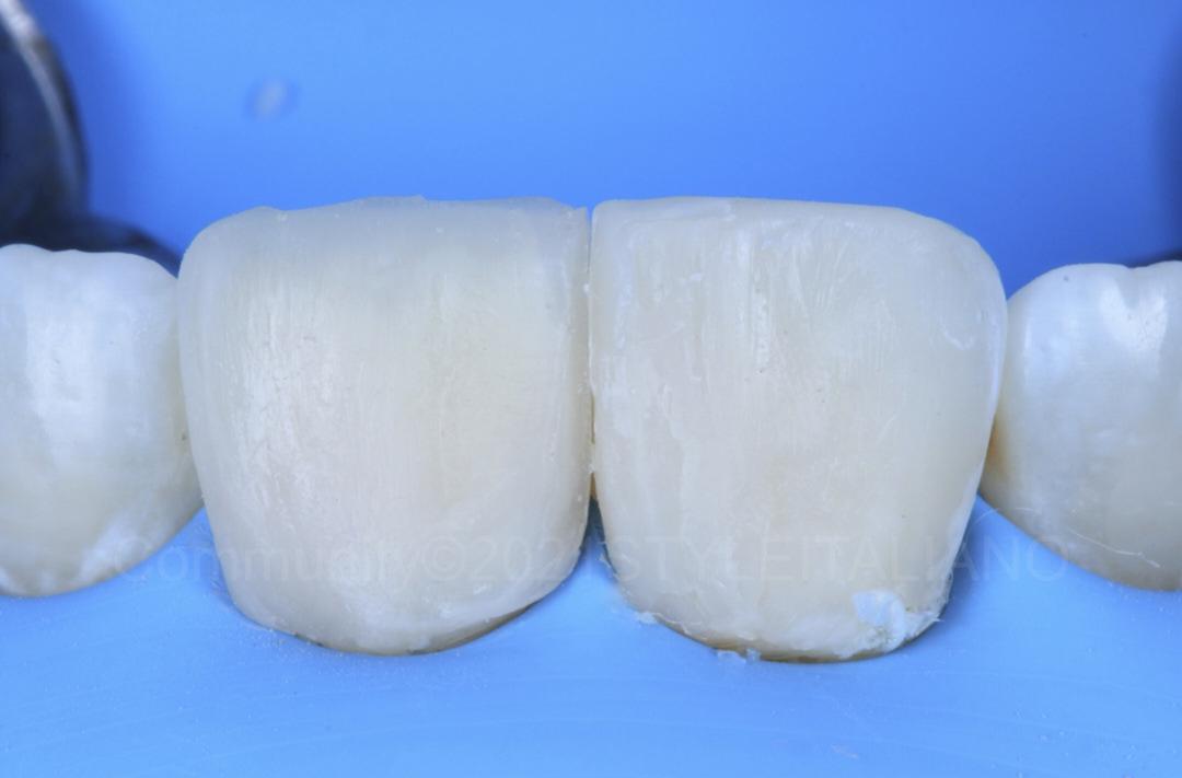 direct veneers on central incisors before finishing style italiano styleitaliano