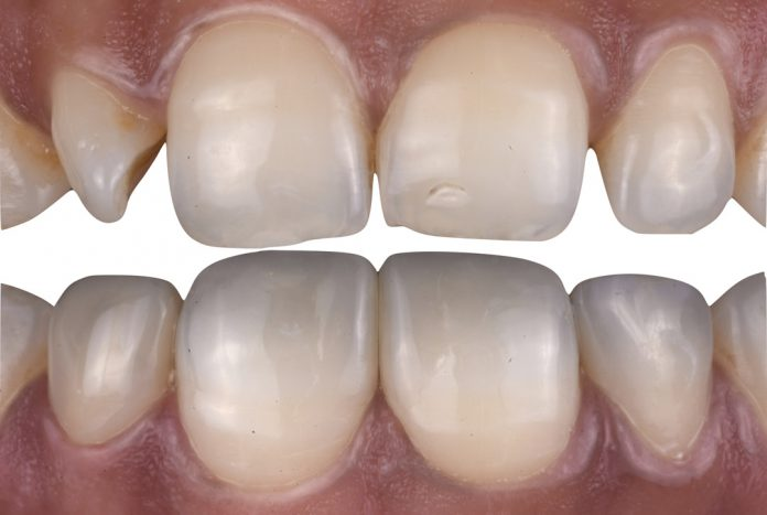 before and after composite modification of four incisors styleitaliano style italiano