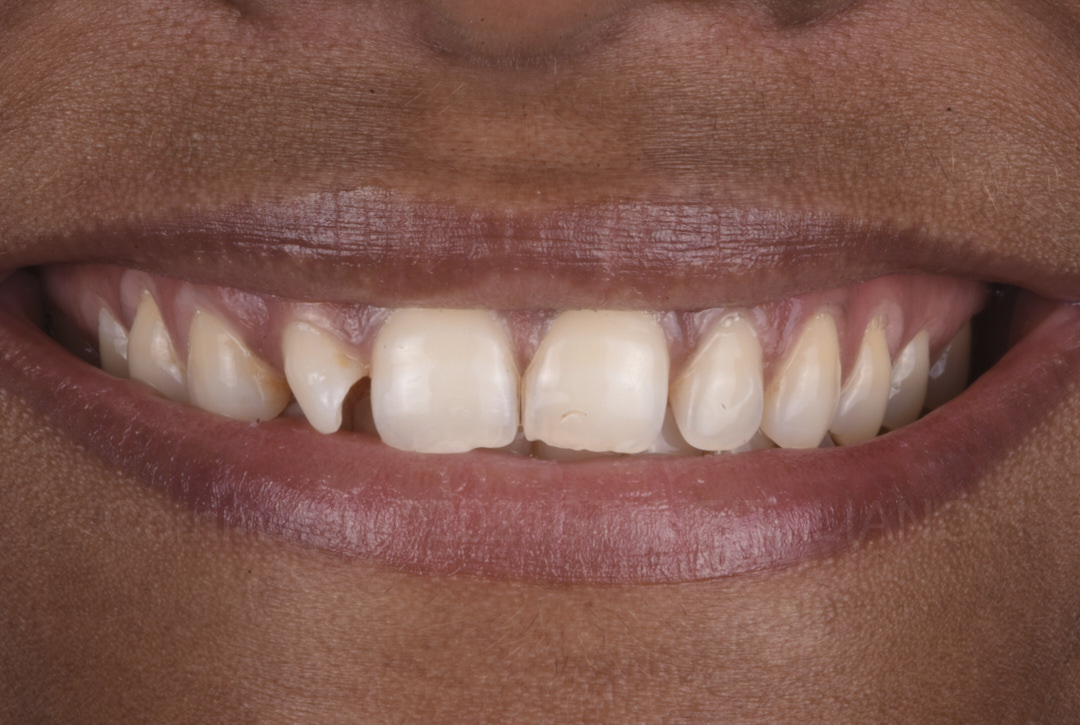 smile with rotated lateral incisor styleitaliano style italiano