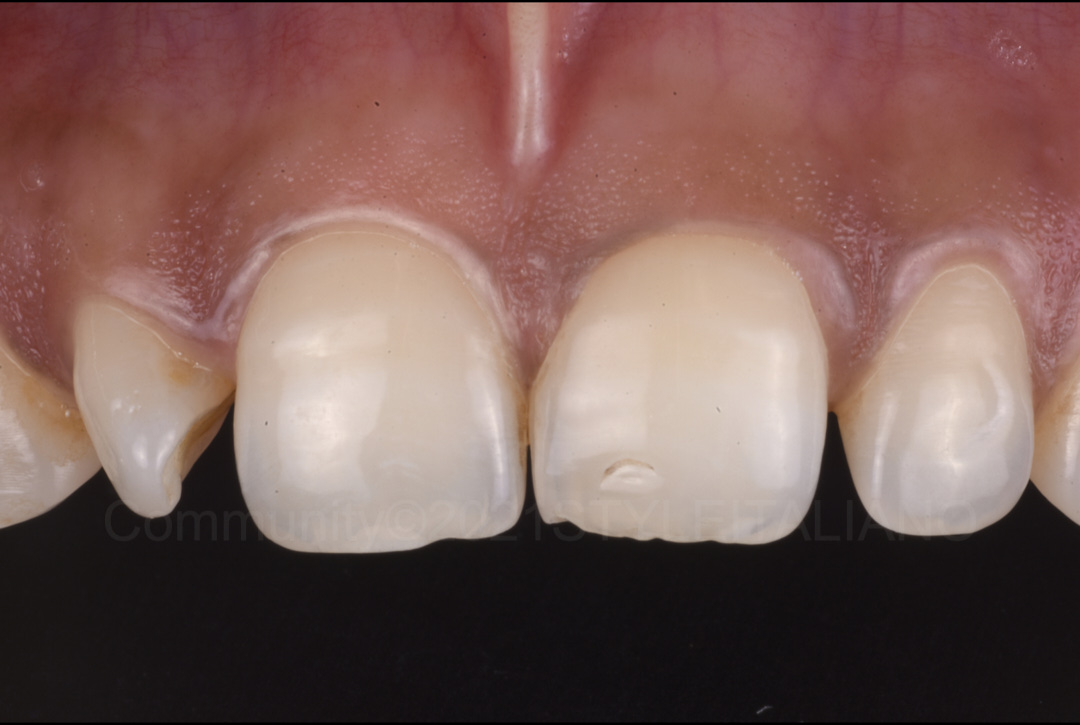 close-up showing rotated lateral incisor styleitaliano style italiano