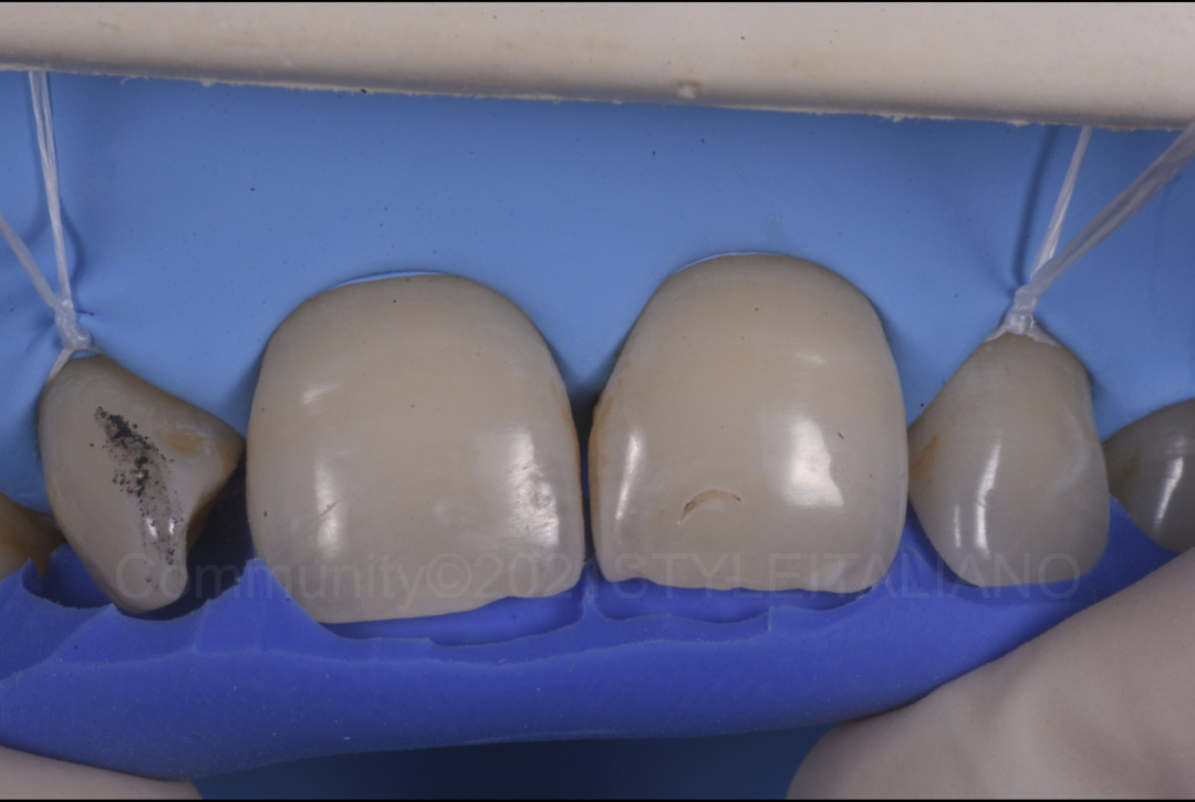 try in of the silicone index before restoration style italiano styleitaliano