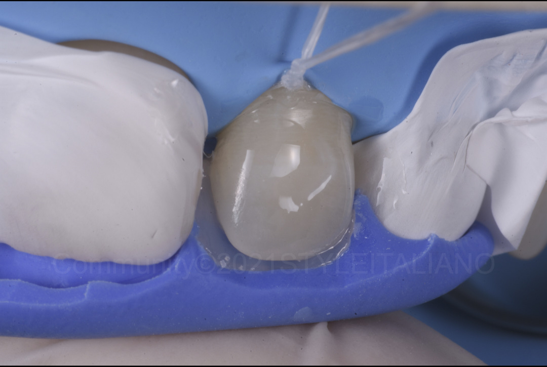 building the palatal wall with a silicone index styleitaliano style italiano