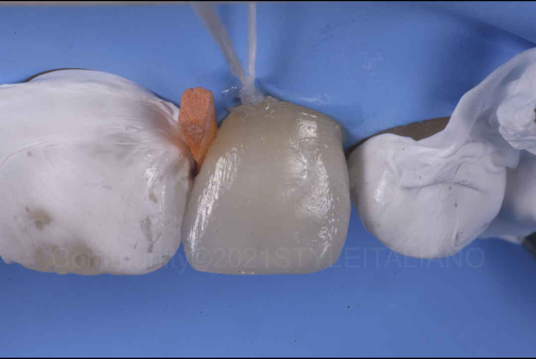 lateral incisor modified with composite resin style italiano styleitaliano