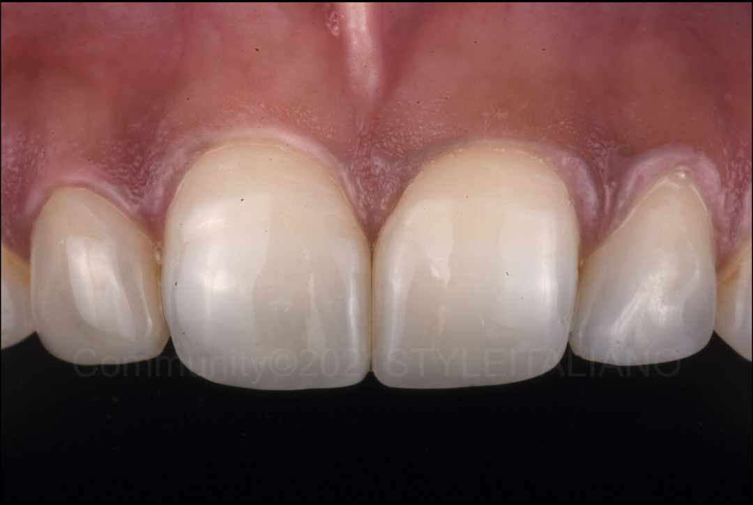 final result after composite restorations styleitaliano style italiano