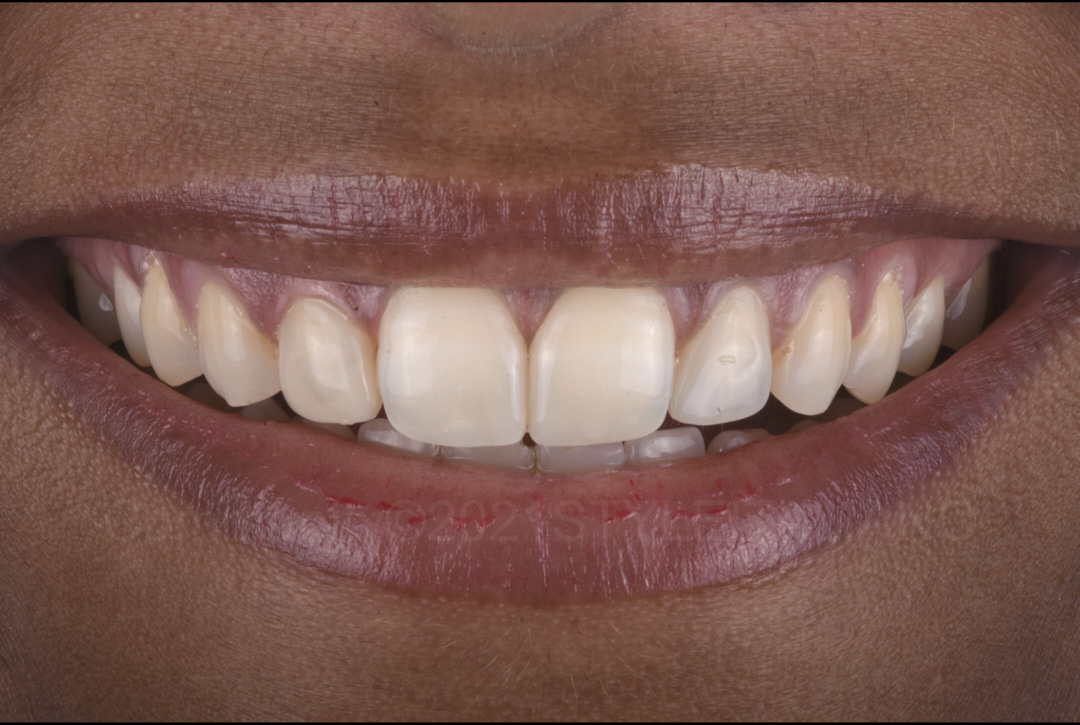 satisfied patient after incisor composite restorations style italiano styleitaliano
