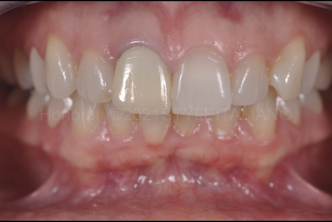 old crown on upper right incisor style italiano styleitaliano