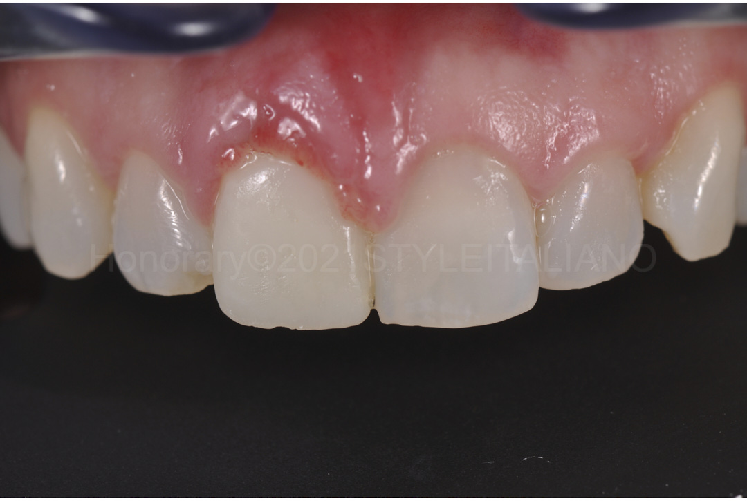 provisional crown and gums after connective tissue grafting style italiano styleitaliano