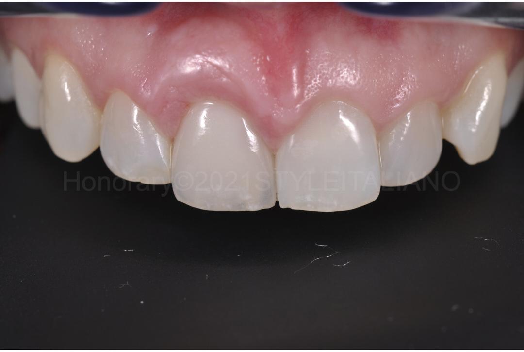 final ceramic crown on upper right incisor style italiano styleitaliano