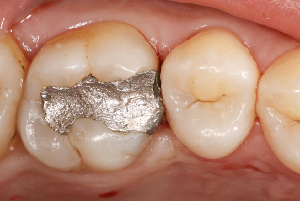 old amalgam filling on upper molar style italiano styleitaliano