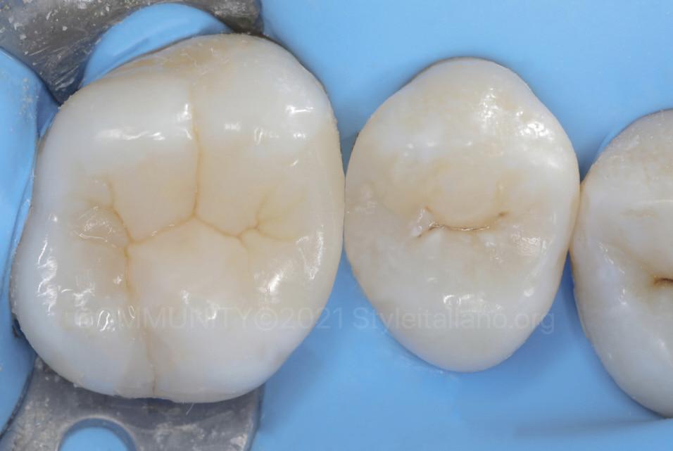 finished composite restorations on upper molar and premolar style italiano styleitaliano