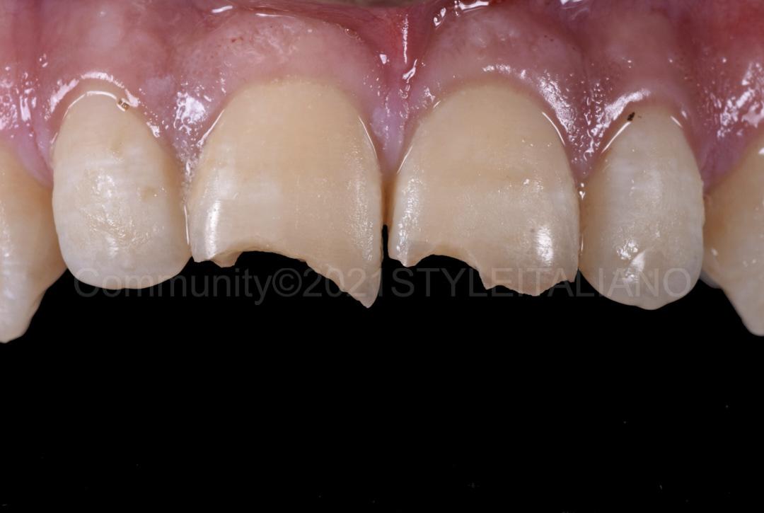 broken central incisors style italiano styleitaliano