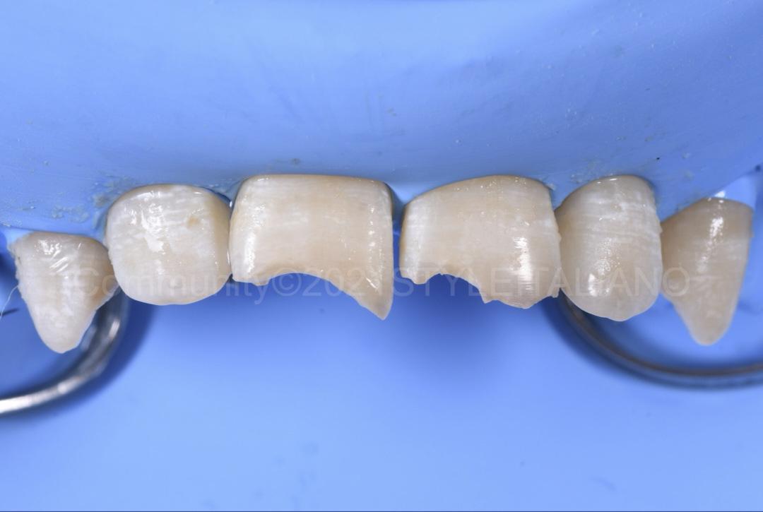 rubber dam isolation of fractured teeth style italiano styleitaliano