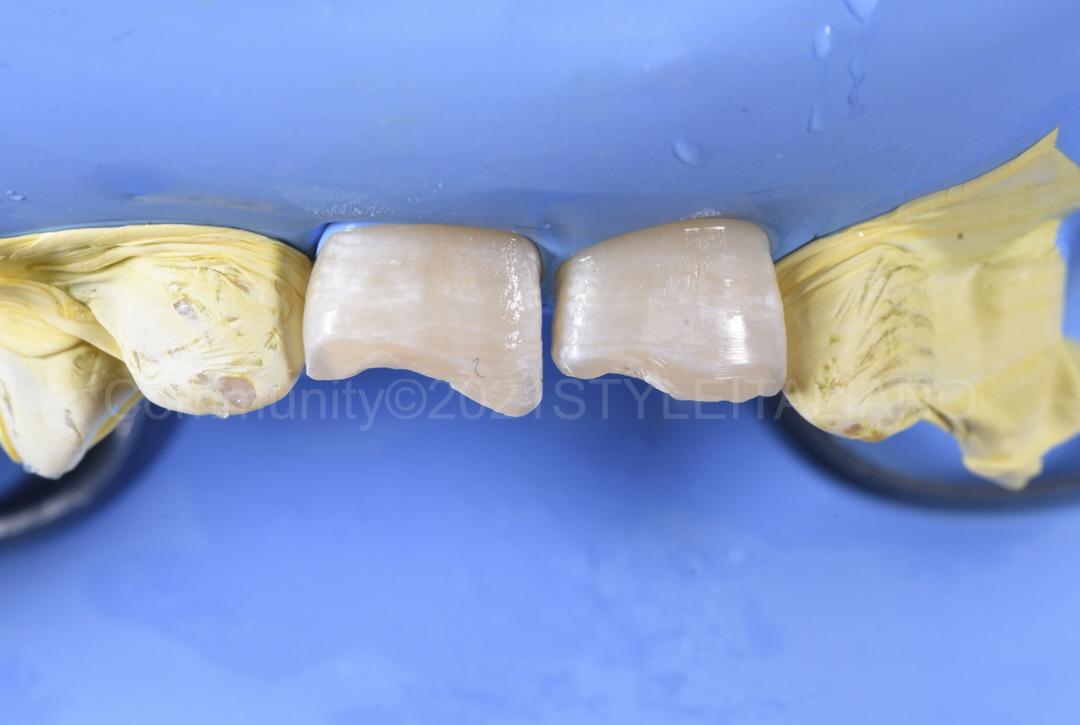 prepared class 4 cavities style italiano styleitaliano