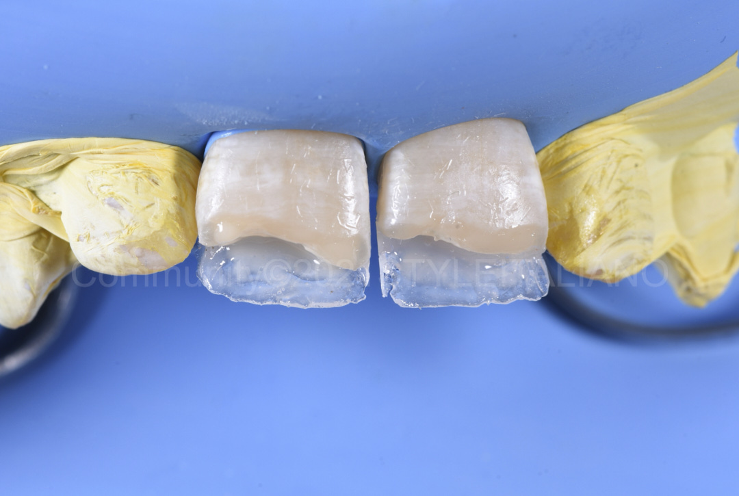reinforcing palatal composite build-up style italiano styleitaliano