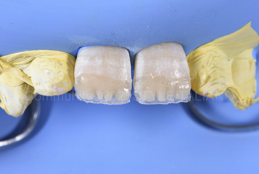 dentin shade layering with mamelons style italiano styleitaliano