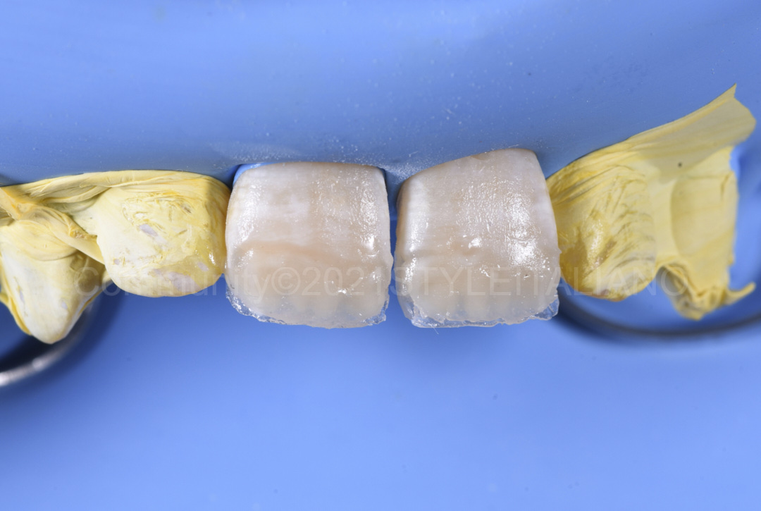 opalescent layer for natural appearance of restorations style italiano styleitaliano