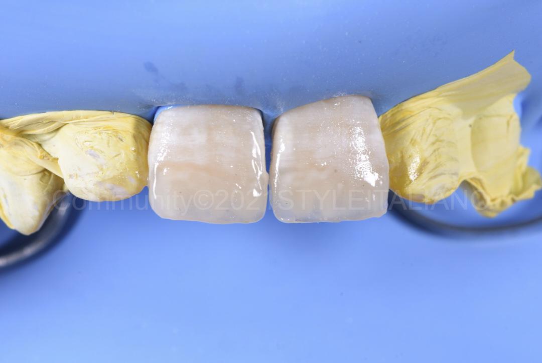 enamel layer before finishing procedures style italiano styleitaliano