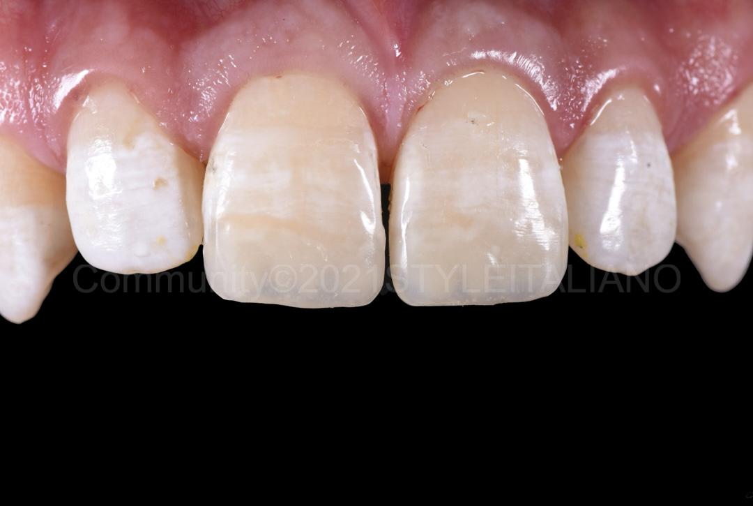 finished and polished incisor restorations style italiano styleitaliano