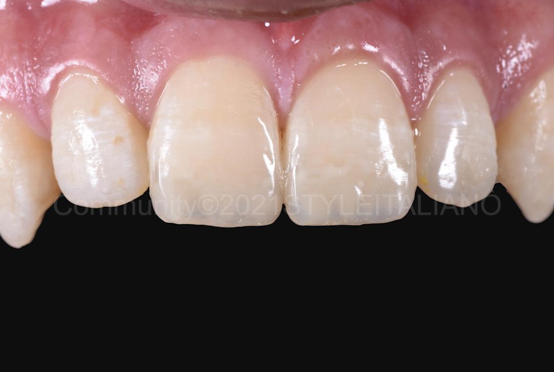restored central incisors style italiano styleitaliano