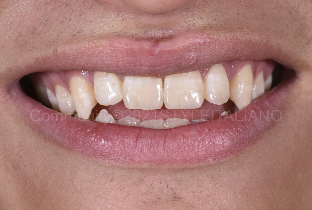 smile with restored teeth after fracture style italiano styleitaliano