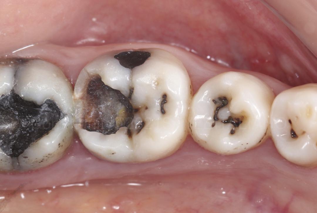 molar with extended decay style italiano styleitaliano