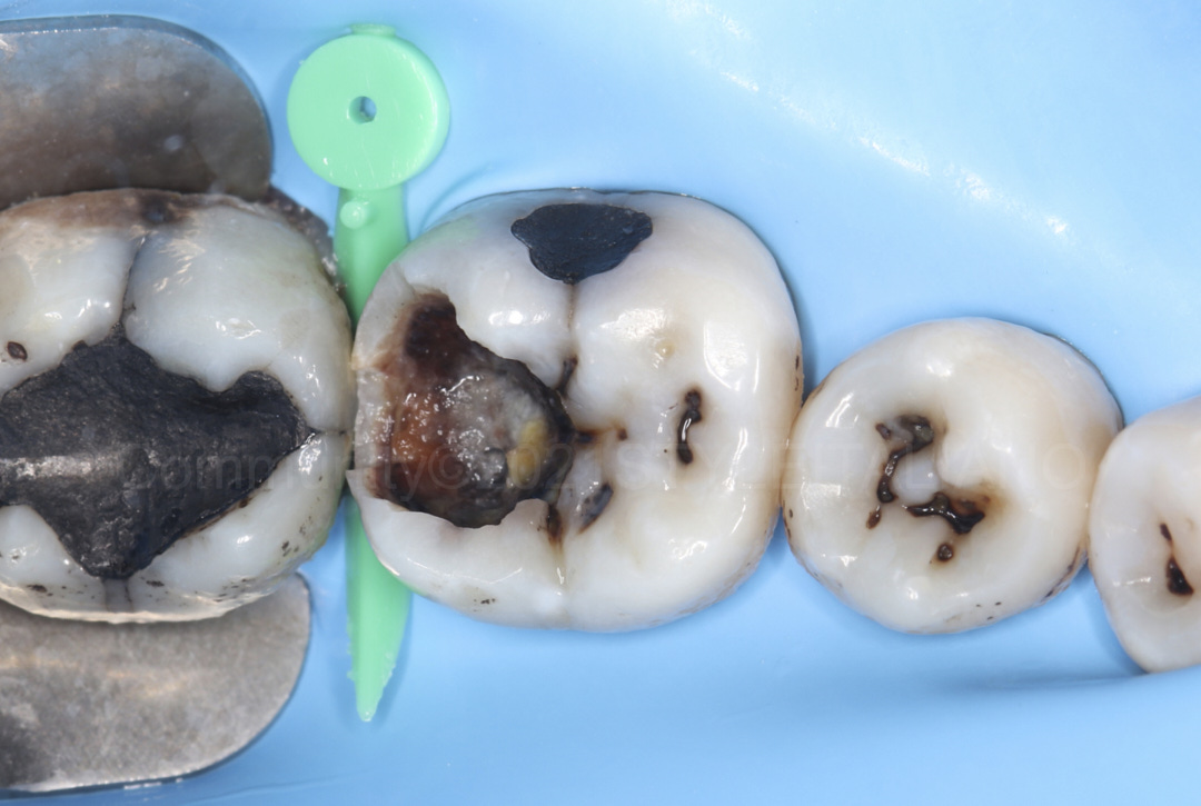 isolated field before caries removal styleitaliano style italiano