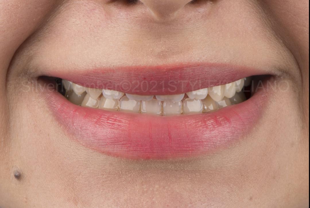 shy smile with upper lip hiding teeth style italiano styleitaliano