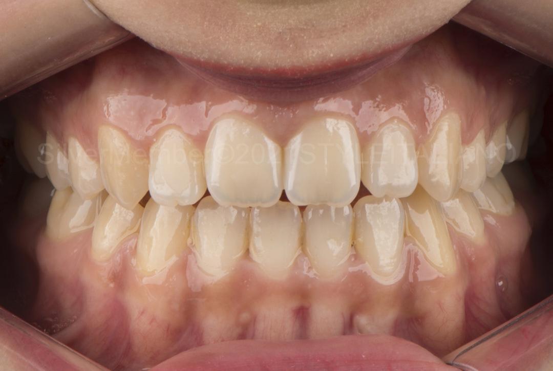 intraoral view of short upper teeth style italiano styleitaliano