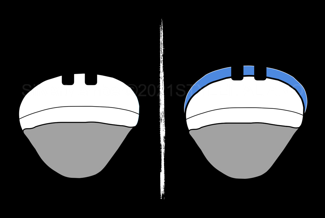 illustration of veneer preparation with and without mock-up style italiano styleitaliano